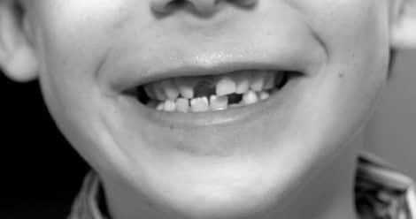 Sognare denti che cadono, perdere i denti
