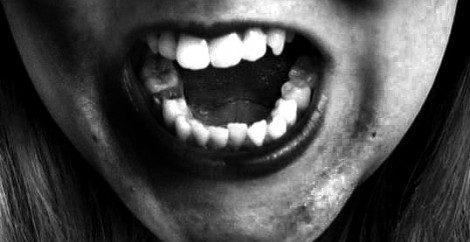 Sognare denti sporchi, marci, cariati, rovinati