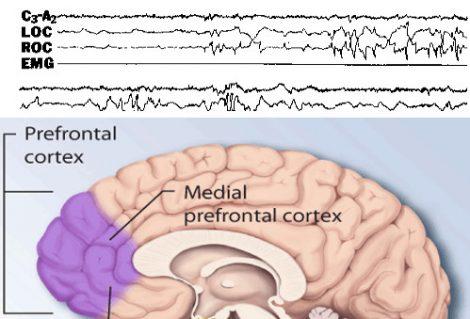 tracciato polisonnografico di un sogno lucido; sogno lucido e cervello